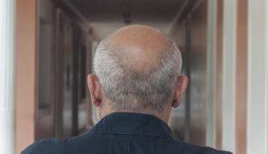 Homem calvo de costas, em um corredor, com destaque para a região sem cabelo (Foto: Viktor Braga/UFC)