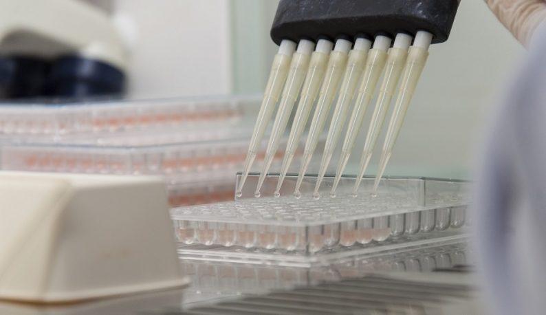 Equipamentos de laboratório aplica líquido rosa em pequenos frascos ((Foto: Viktor Braga/UFC))