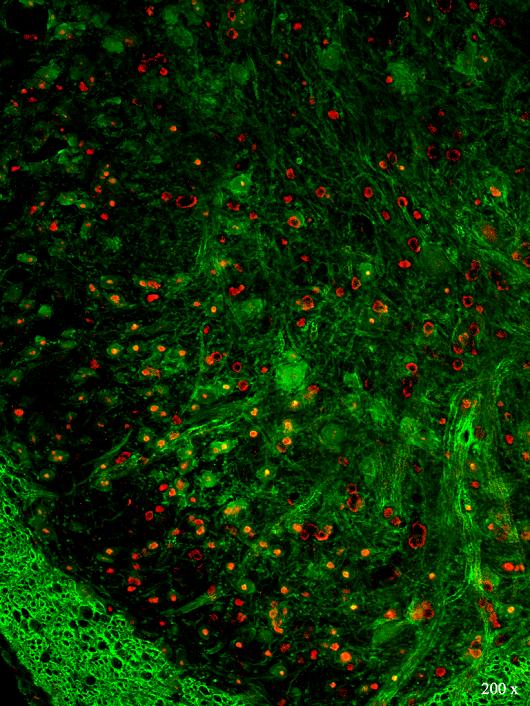 Imagem abstrata verde com pontos vermelhos (Imagem: Francisco Fábio Bezerra de Oliveira))