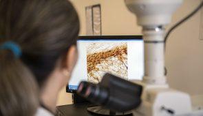 Pesquisadora estuda efeitos da BBG em microscópio com imagem de célula ao fundo (Foto: Jr. Panela/UFC)