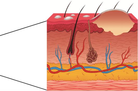 Desenho que reproduz o tecido epitelial do camundongo após sofrer queimadura (Imagem: Abel Alencar)