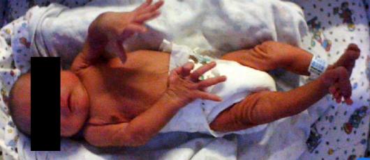 Bebê deitado, com tarja preta nos olhos, braços e pernas rígidas (Foto: Arquivo pessoal)