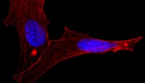 Imagem de microscópio de célula, de cor vermelha, com dois núcleos azuis, em fundo preto